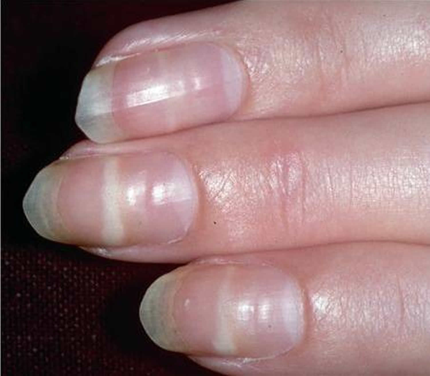 Black lines in fingernails pictures Black Spots on Skin, Dots, Patches, Dark, Tiny, Itchy