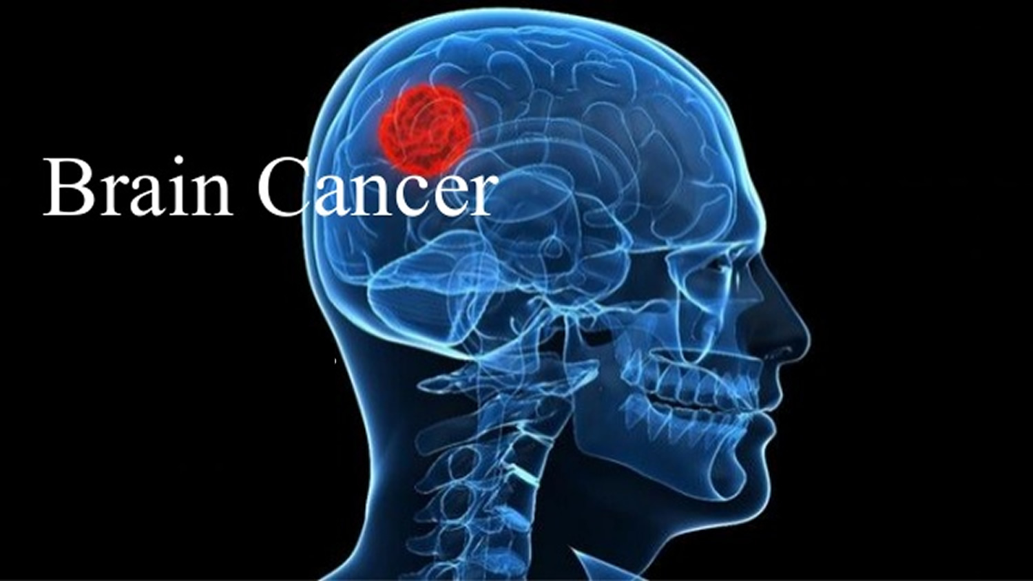 Brain Tumor Risk Factors advise