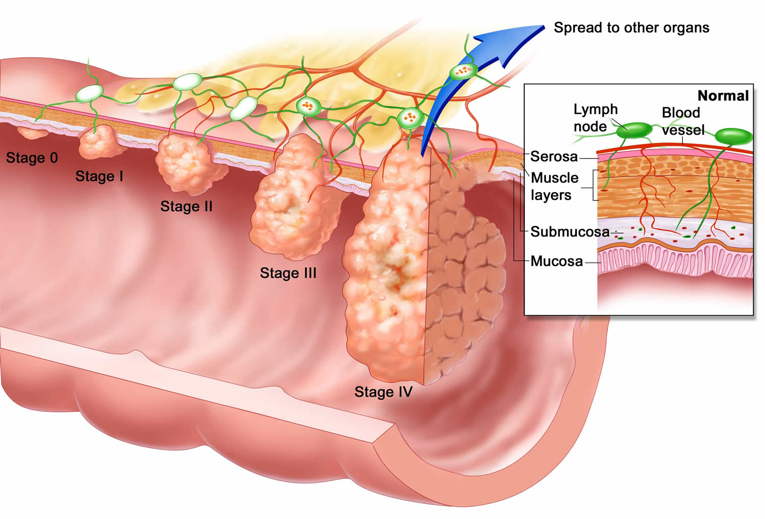 Types of Esophageal Cancer