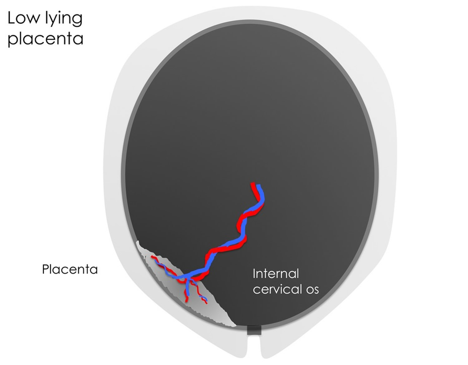 Low lying placenta ultrasound pictures