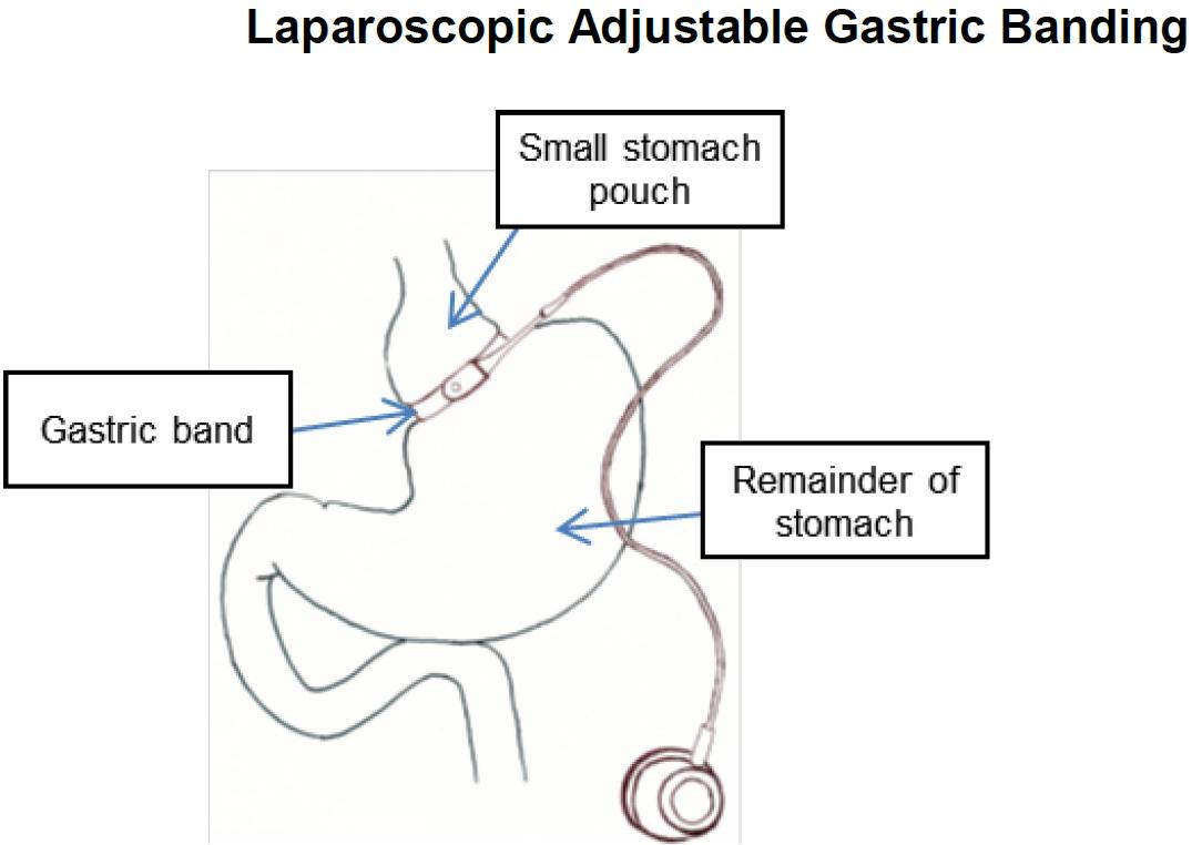 laparoscopic adjustable gastric banding surgery