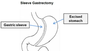 sleeve gastrectomy bariatric surgery