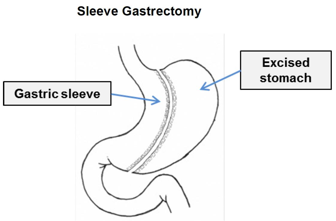 sleeve gastrectomy bariatric surgery