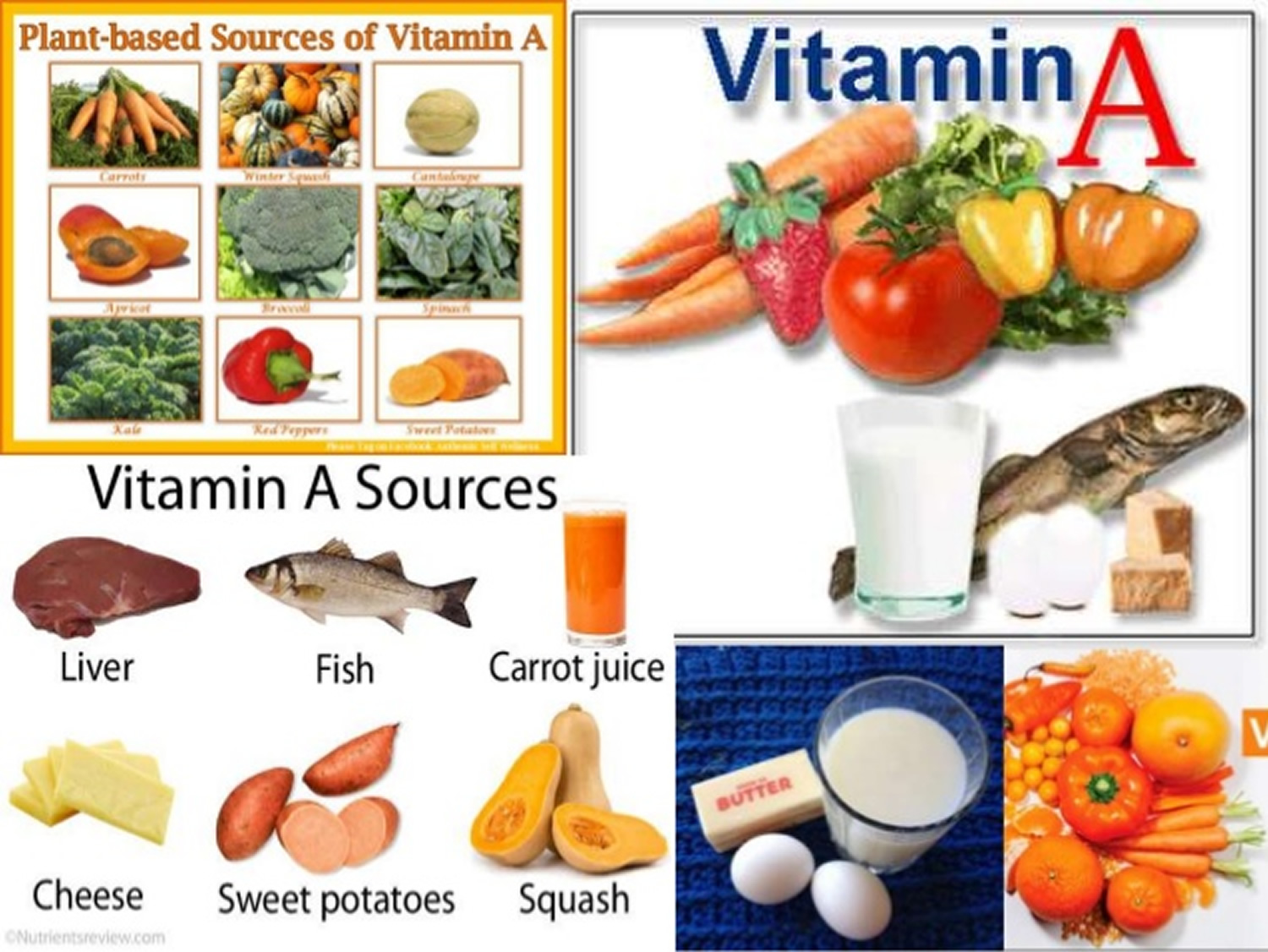 Foods with vit a