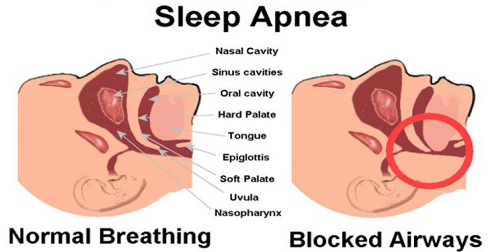 Sleep-Apnea-Causes