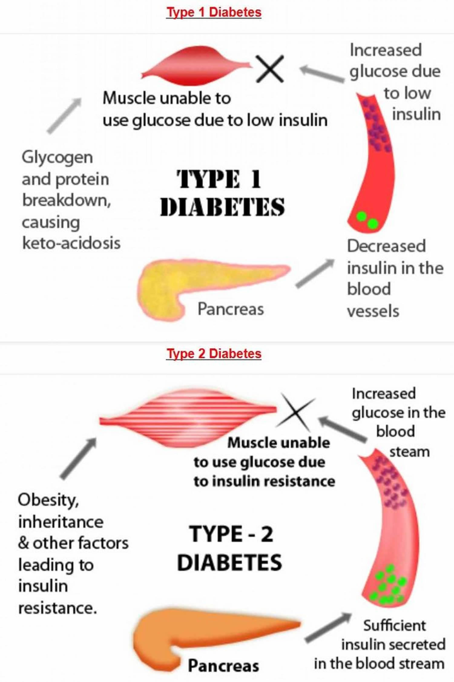 diabetes type 1 and type 2 diabetes
