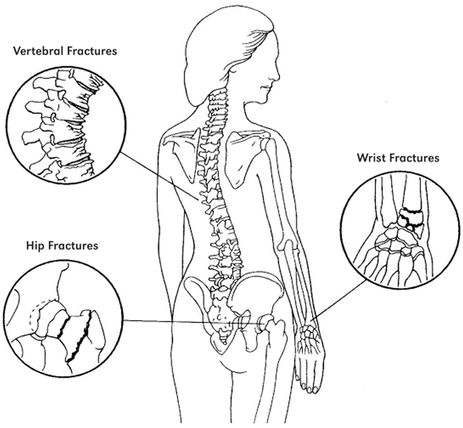 bone fracture areas in osteoporosis
