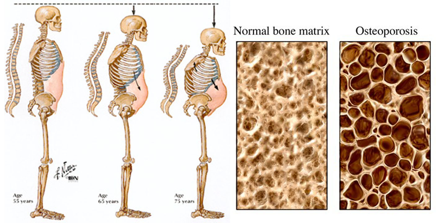 Osteoporosis - Causes, Risk Factors & Treatment, Symptoms
