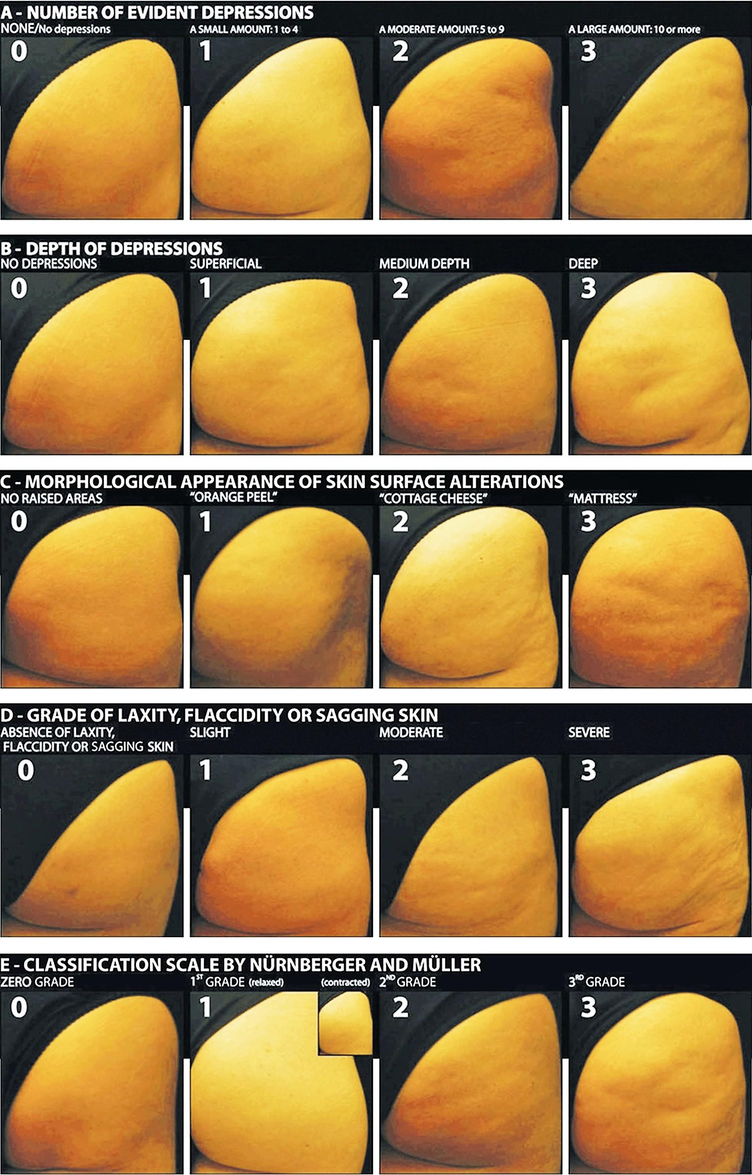 Doris Maria Hexsel's photonumeric scale of cellulite
