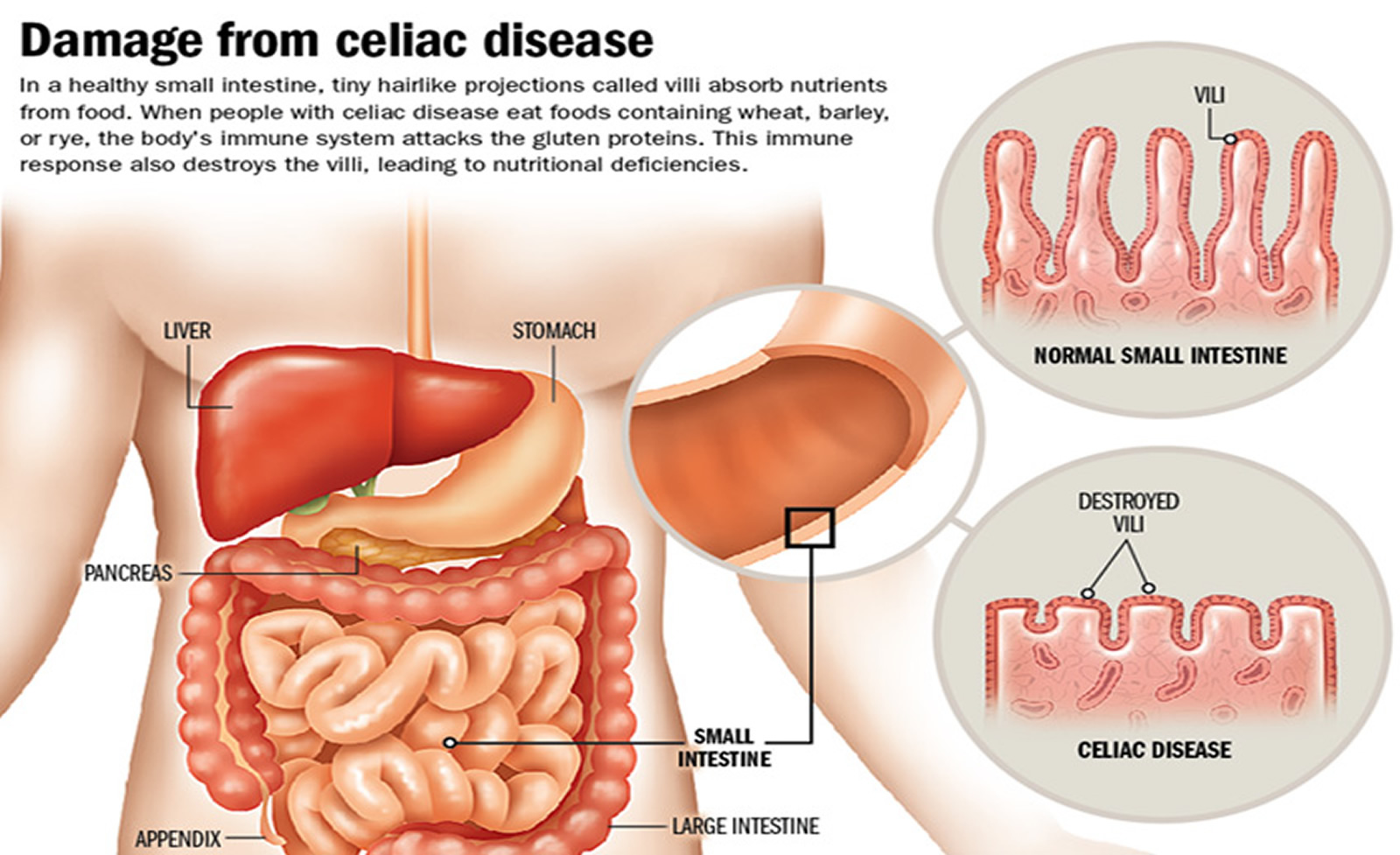 Celiac Disease Diagnosis Symptoms Treatment Diet
