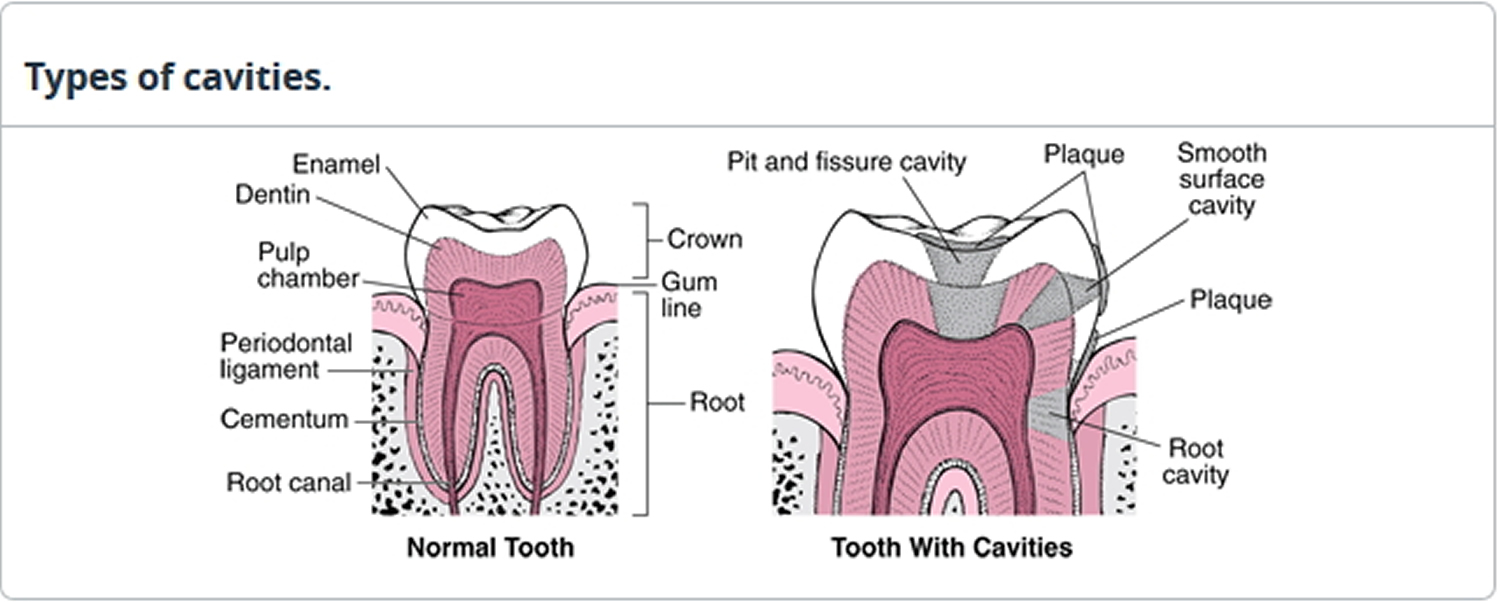 types of tooth cavities