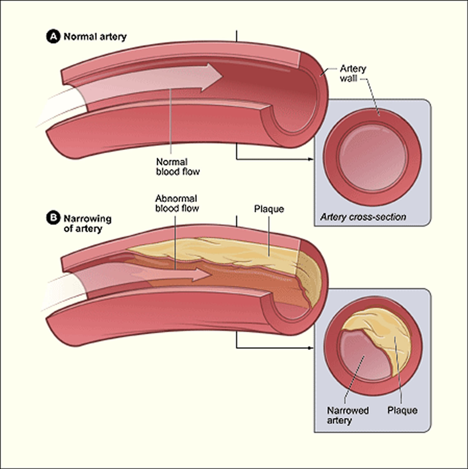 Atherosclerosis plaque