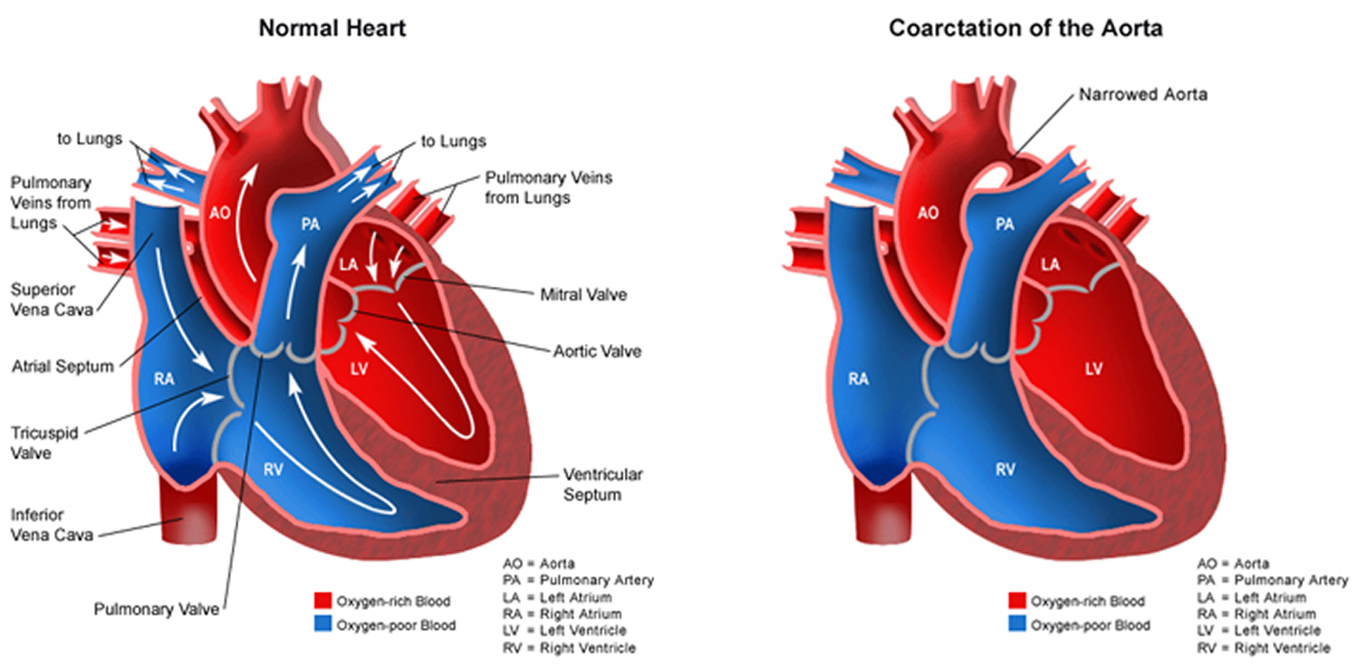 What is Congenital Heart Disease - Types, Causes, and Symptoms