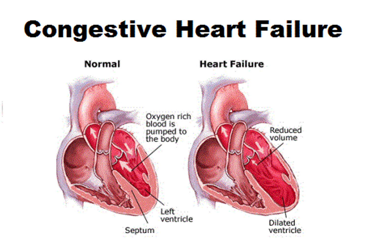 What Is Congestive Heart Failure Stages Causes Signs Symptoms