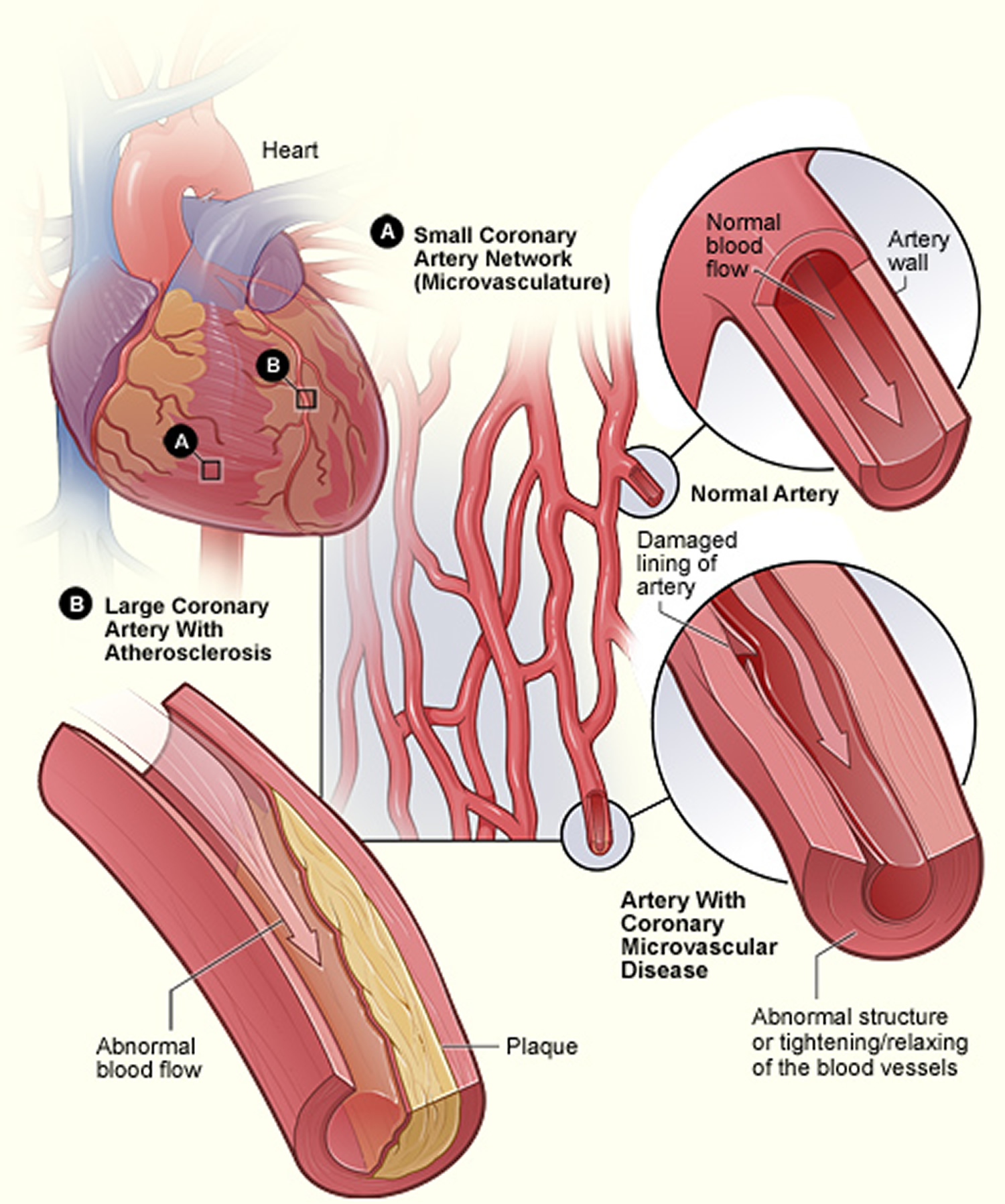 how to know heart attack symptoms
