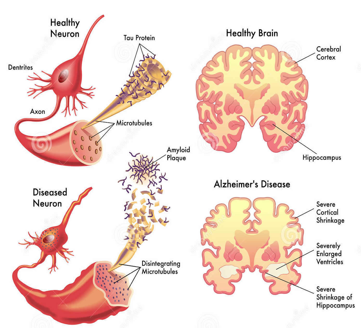 dementia stages