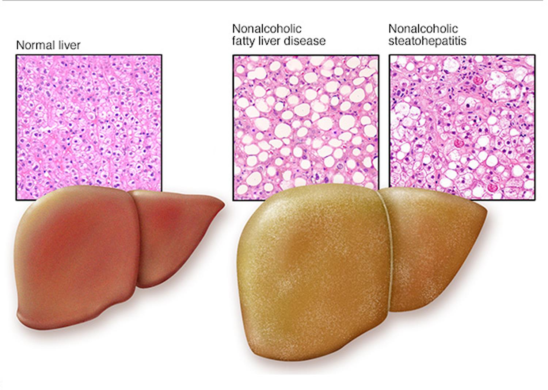 fatty liver disease amp nonalcoholic causes symptoms