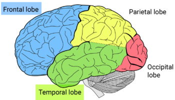 frontotemporal lobes dementia