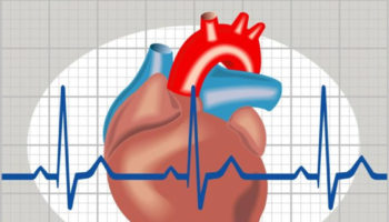 heart arrhythmia