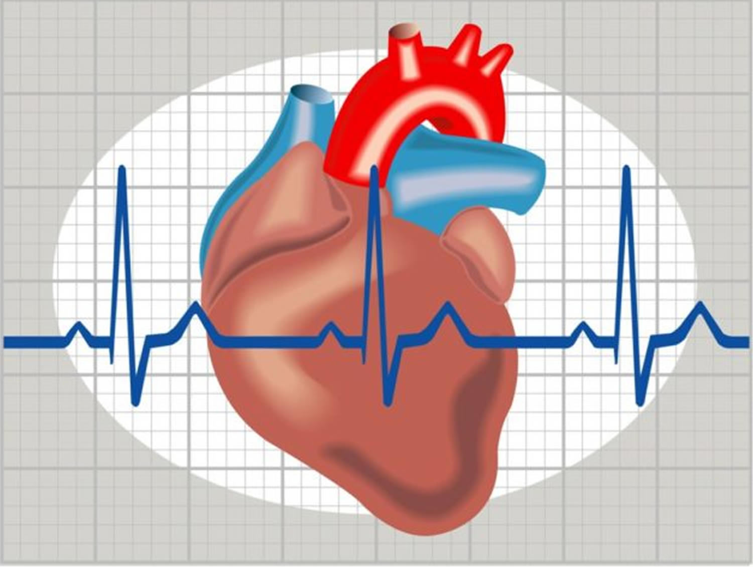 What Is Heart Arrhythmia Symptoms Causes Treatment