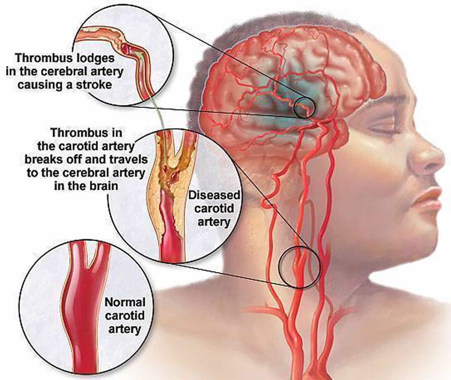 cartiods diseas 1 day ago  carotid artery disease is a disease in which a waxy substance called plaque builds up inside the carotid arteries you have two common carotid arteries, one on each side of your neck.
