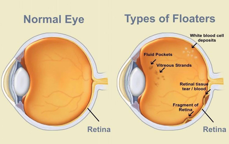 Eye-Floaters