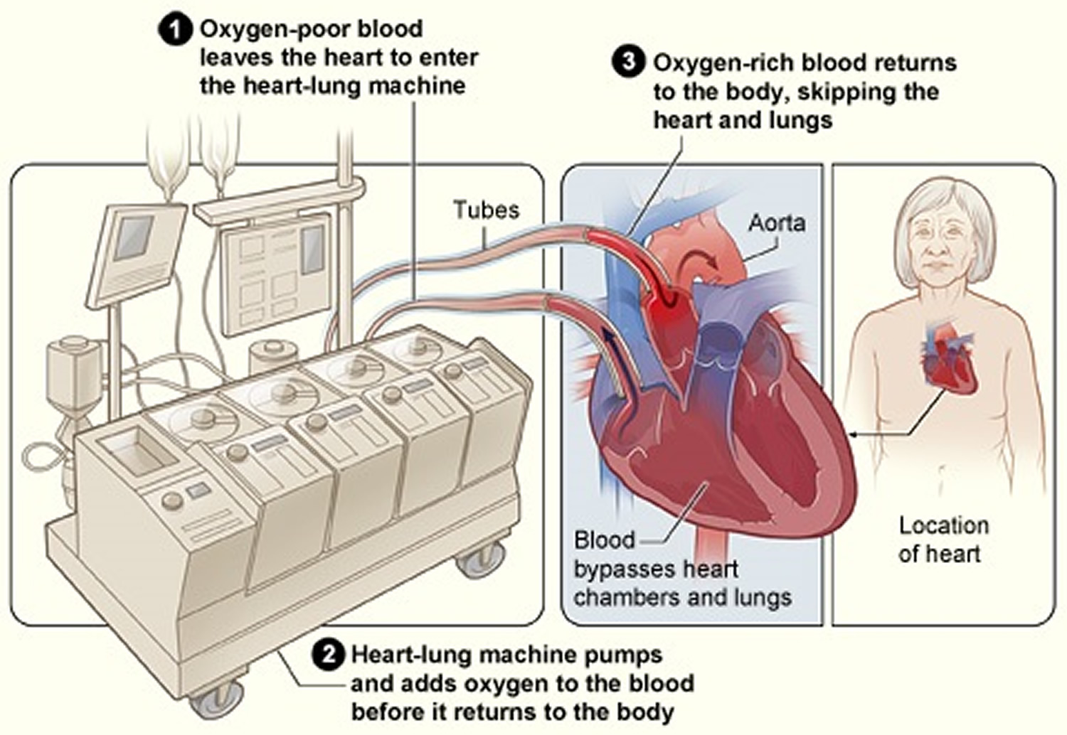 heart lung machine Searching for a hear lung machine check out our new, used and refurbished heart-lung machines from terumo sarns, maquet jostra, and sorin stockert request a quote online or call us at 704-233-7574.