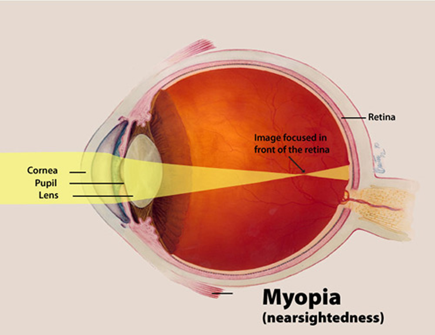 Nearsightedness-Myopia