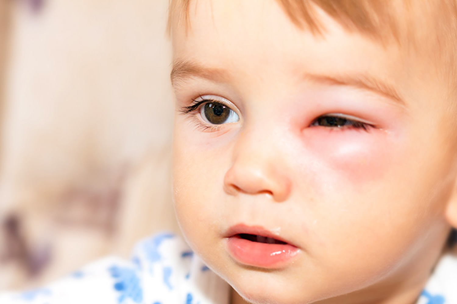 Eye Infections In Baby Children Amp Adults Causes
