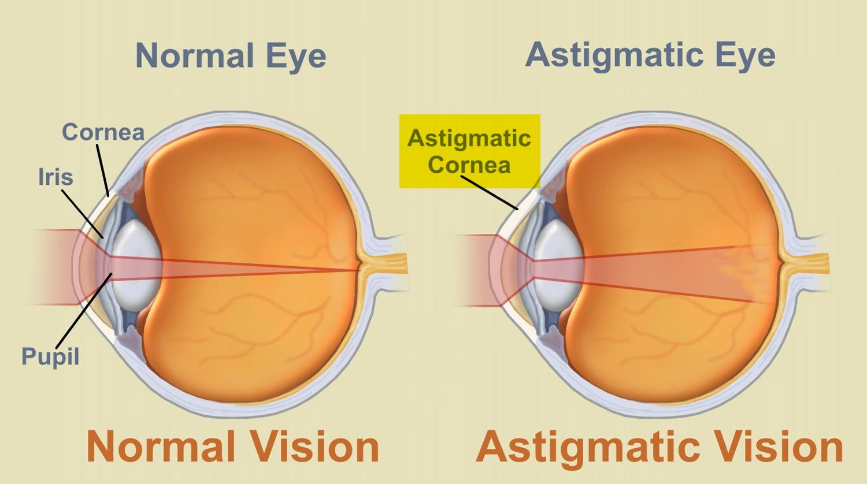 astigmatism 1