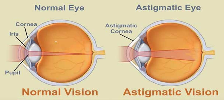 astigmatism-cure