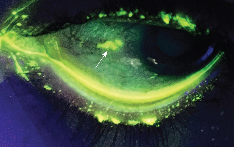 Eye Pain - Pain Behind  Sharp Pain  Eye Pain With Headache