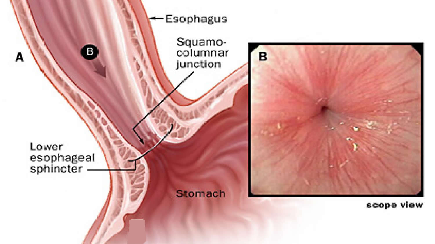 The Human Esophagus Functions And Anatomy And Problems