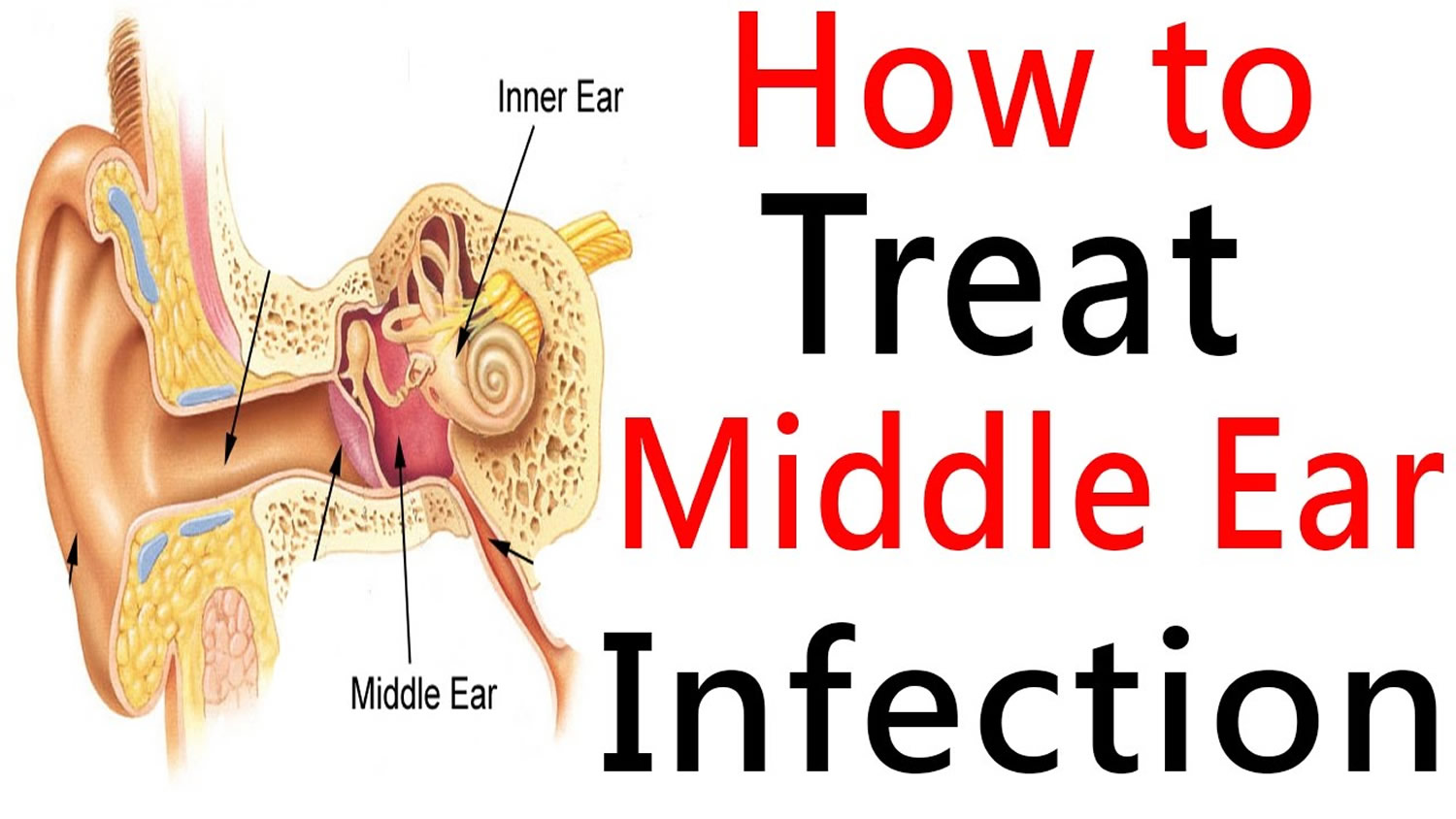 Middle Ear Infection & Middle Ear Effusion - Causes & Treatment