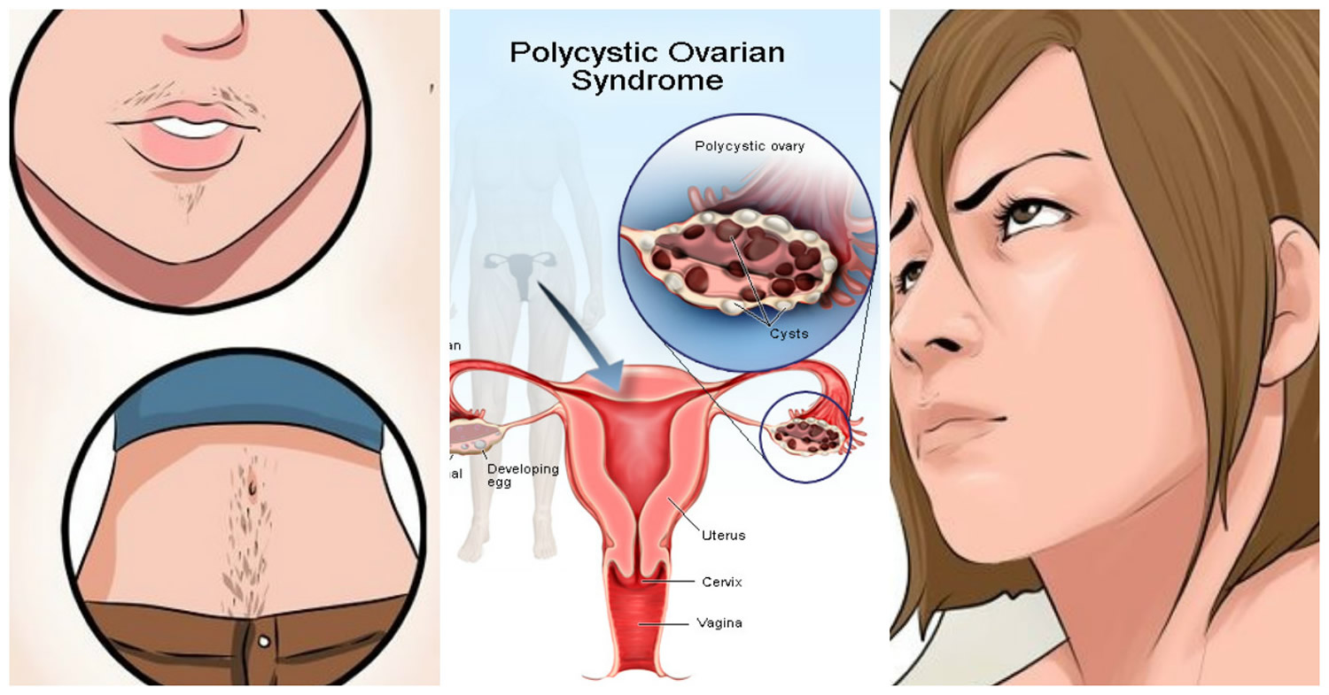 polycystic ovarian syndrome An exploratory survey to assess the knowledge, practice and prevalence of polycystic ovarian syndrome among women attending gyne opd of selected hospital of delhi with a view to develop a health care package on polycystic ovarian syndrome and its.