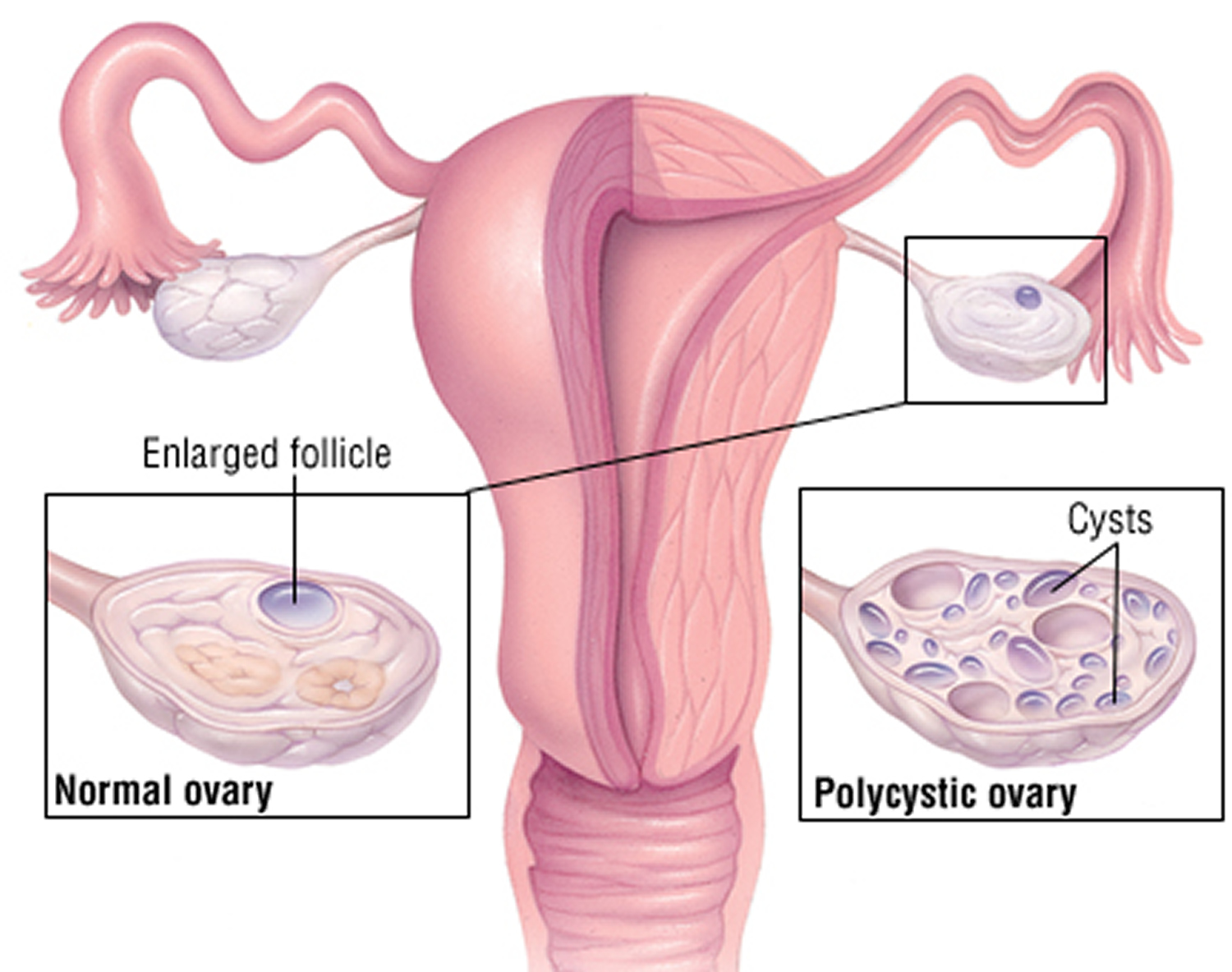 Multifollicular ovaries and pregnancy: is there a danger 67
