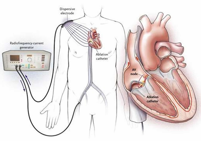 Heart Surgery Types - Open, Bypass, Ablation, Heart Valve surgery