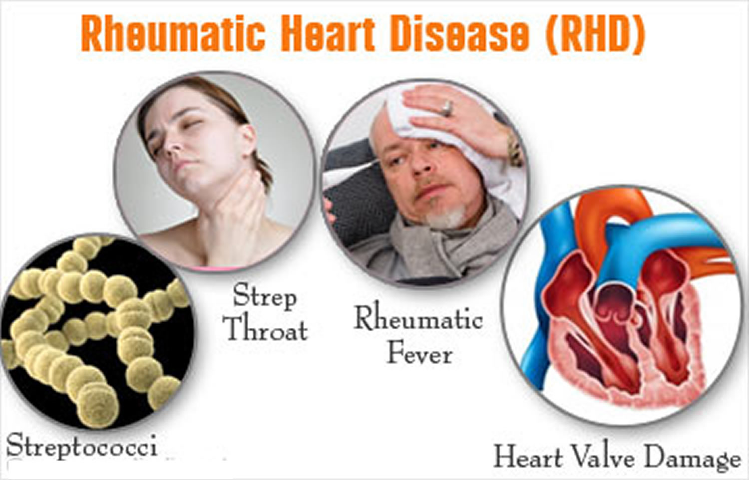causes and symptoms of rheumatic fever Rheumatic heart disease is a common and potentially serious complication that can occur in cases of rheumatic fever in rheumatic heart disease, inflammation causes the heart's valves to become damaged and stiffened, disrupting the normal flow of blood through the heart.
