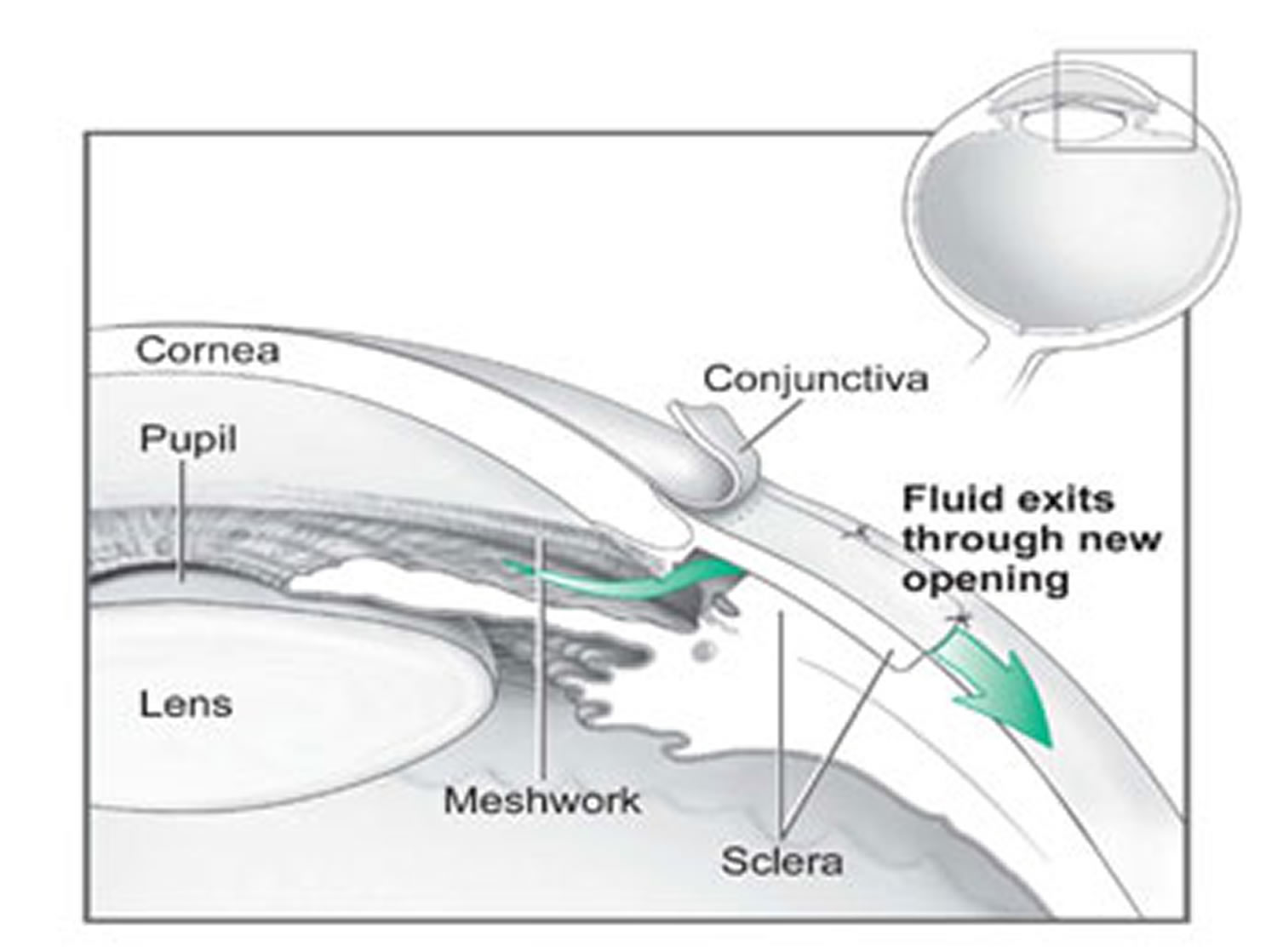 surgical treatment for glaucoma