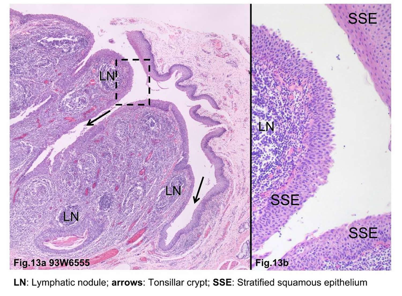 tonsillar crypt microscopy