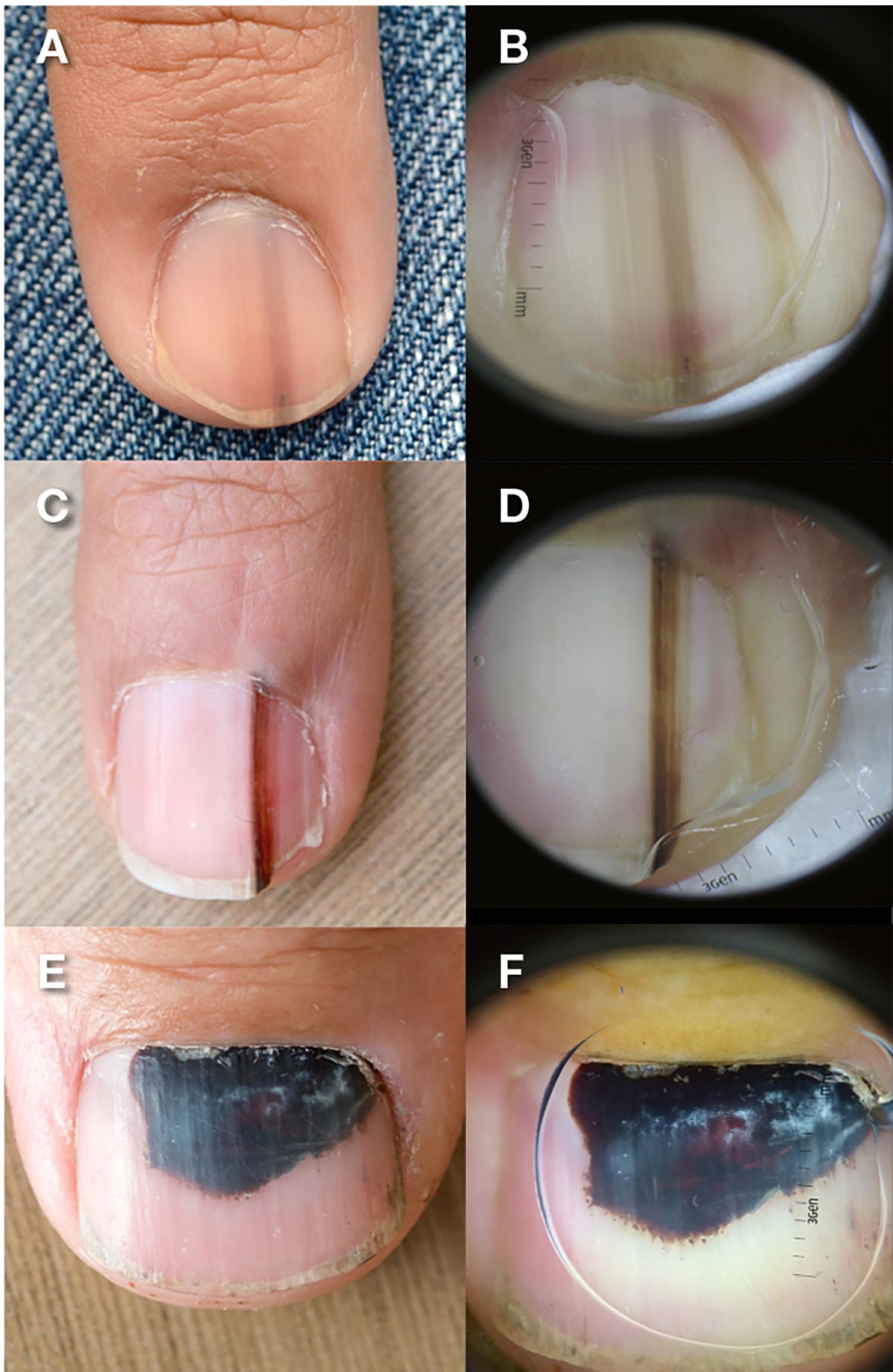 Benign pigmented subungual lesions