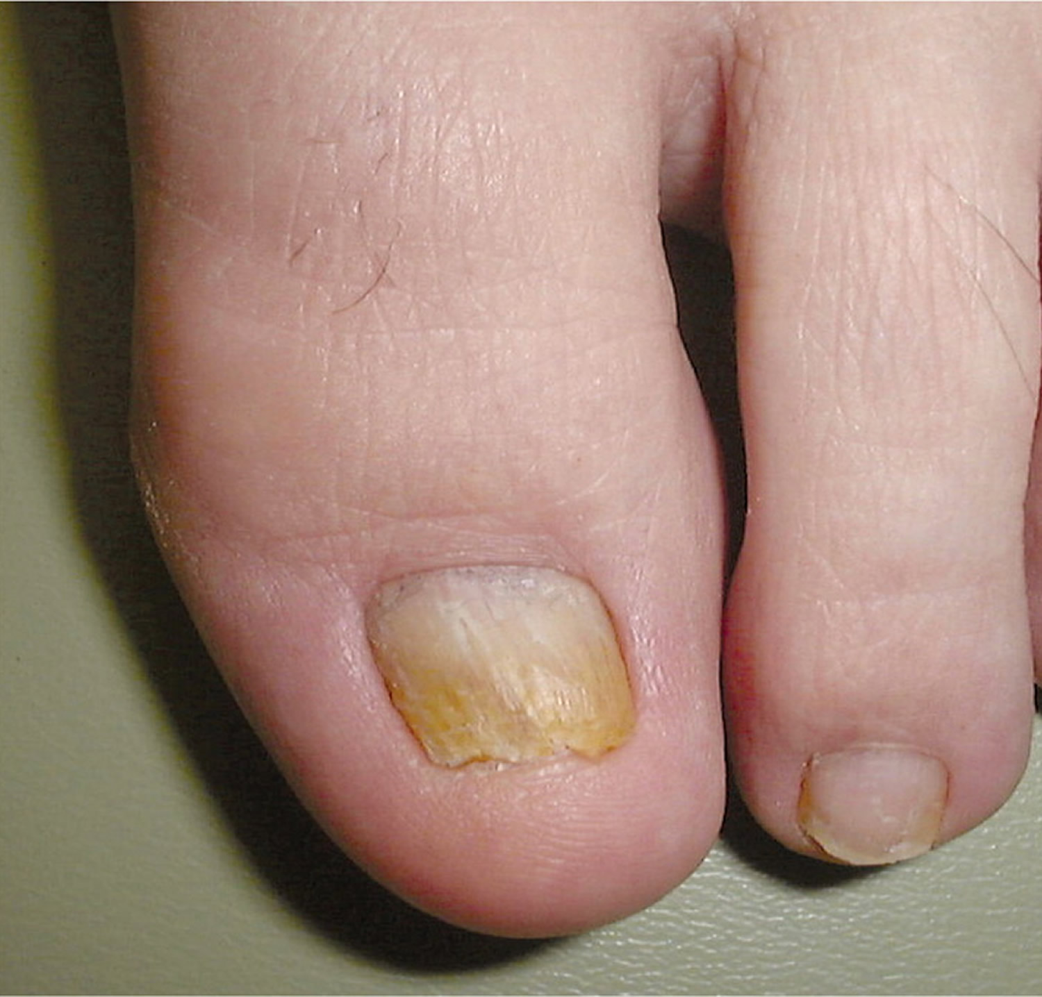 Distal and lateral subungual onychomycosis