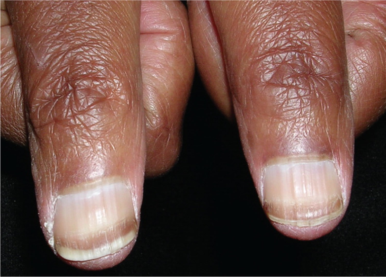 Fingernail Beau Lines