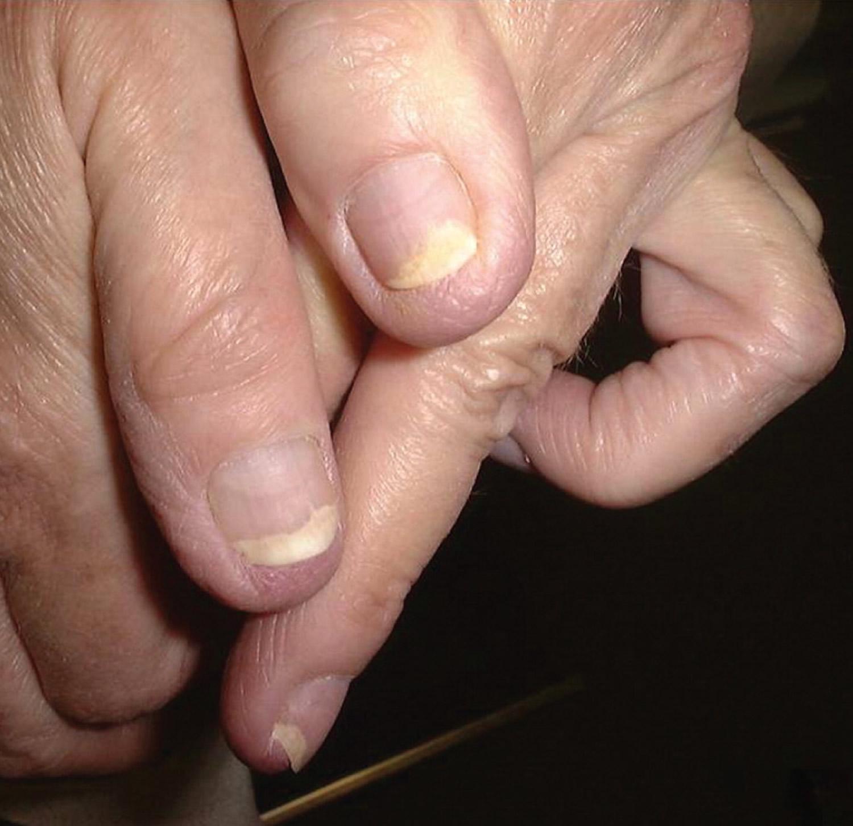 Fingernail fungal infection
