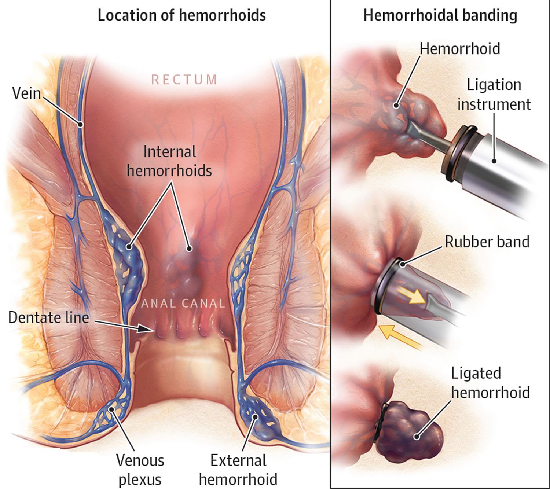 Hemorrhoids rubber band ligation