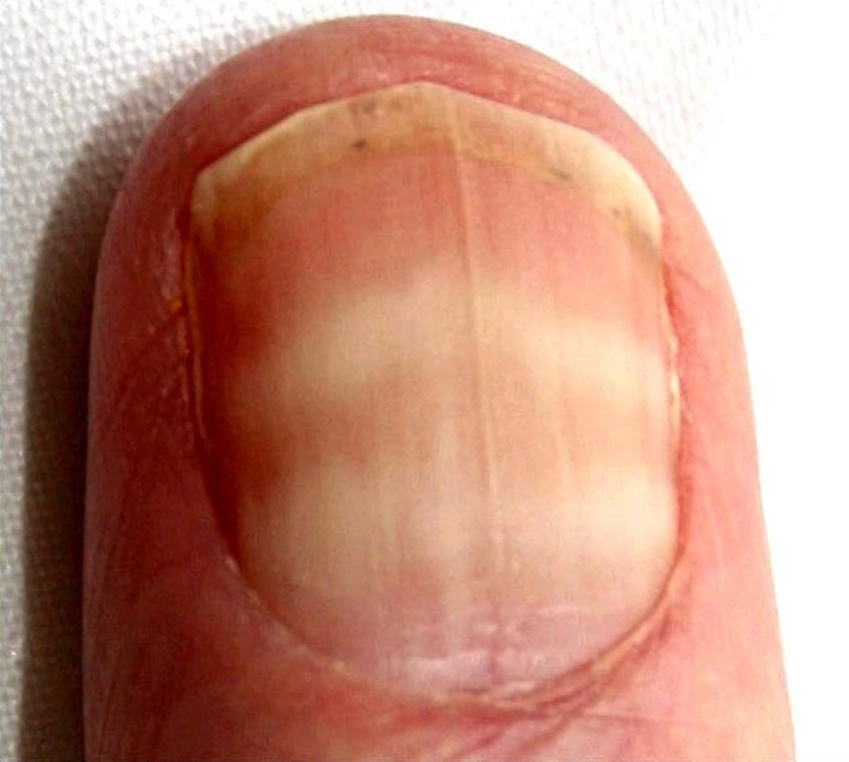 Fingernail Muehrcke Lines