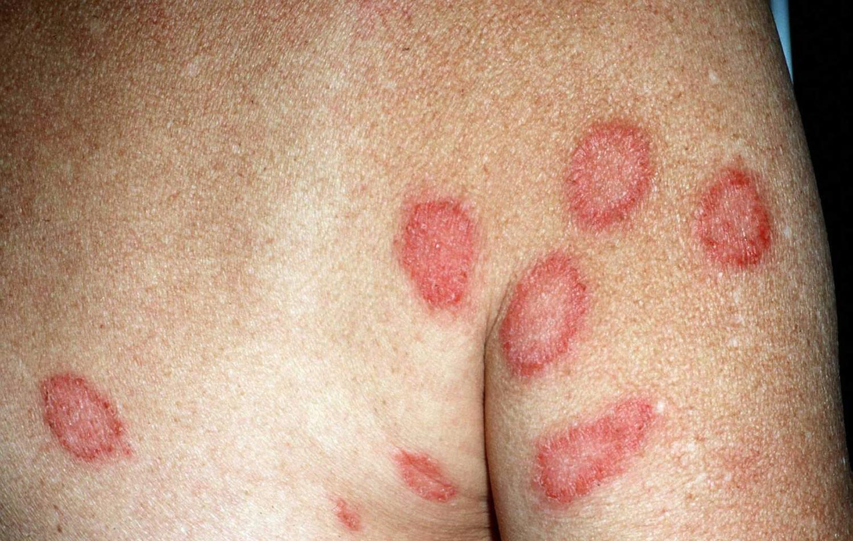 Dermatitis Contact Atopic Perioral Nummular