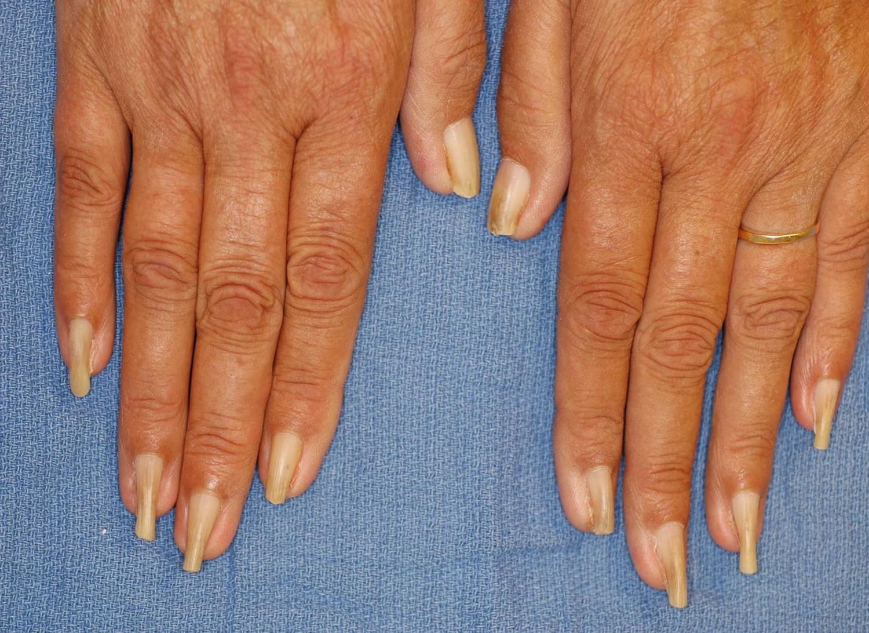 Pincer fingernails