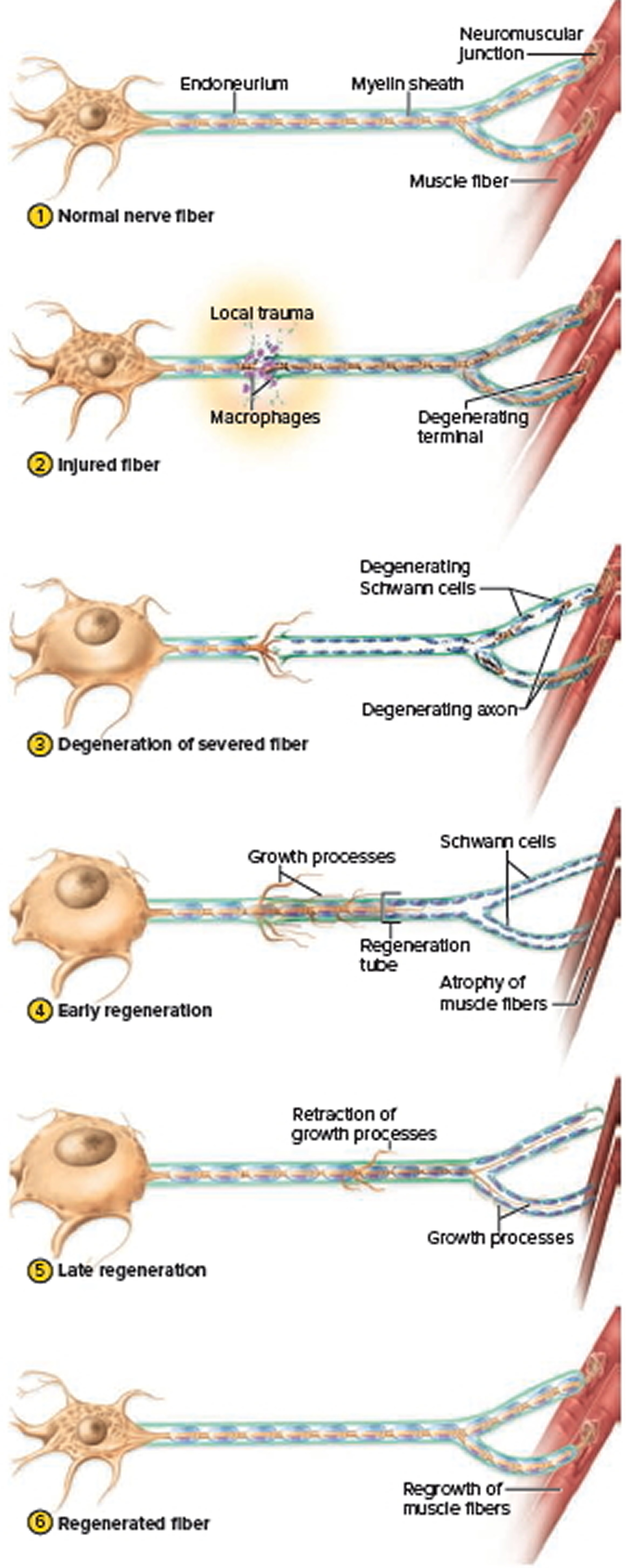 Regeneration of a Damaged Nerve Fiber