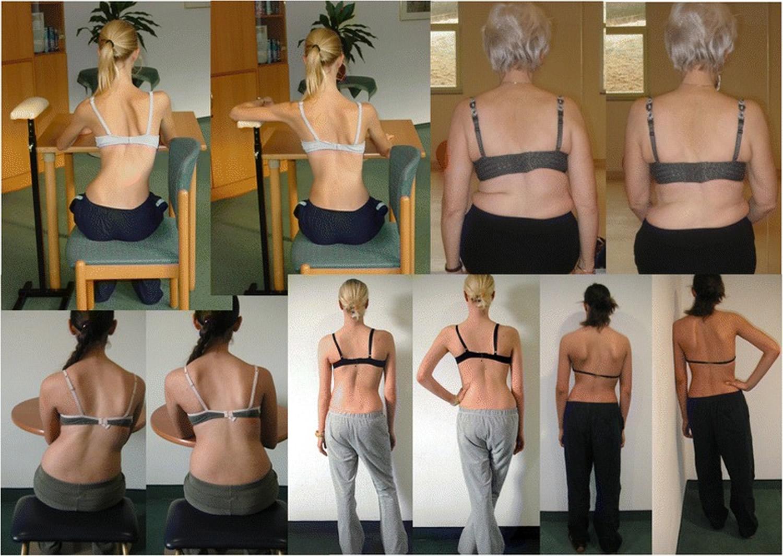Schroth 3D postural corrections
